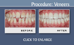 Porcelain Veneers - Case 5 - Before and After Photos