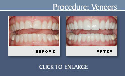 Veneers Before and After Photos - Case 11