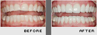 Case 2 - Porcelain Veneers - Before and After Photos