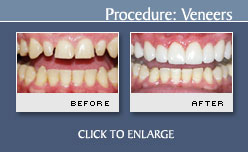 Before and After Photos Dental Veneers - Case 10