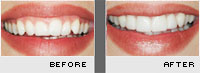 Case 5 - Before and After Photos - Porcelain Veneers
