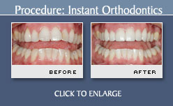 Before and After Photos - Instant Orthodontics - Case 2
