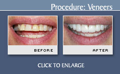Dental Veneers - Case 9 - Before and After Photos