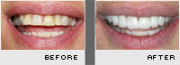 Porcelain Veneers - Before and After Photos - Case 1
