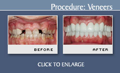 Before and After Photos Porcelain Veneers - Case 6