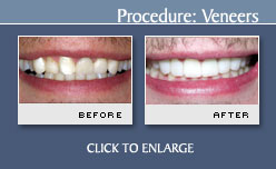 Veneers - Case 12 - Before and After Photos