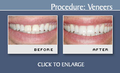 Case 8 - Porcelain Veneers Before and After Photos