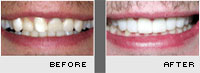 Before and After Photos - Case 4 - Porcelain Veneers